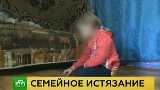 Глава СК поручил взять на контроль дело об истязании девочки за съеденный маргарин