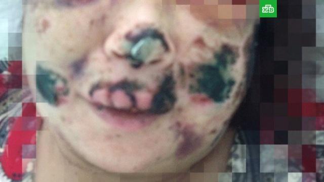 Мужчина в Кургане избил женщину и откусил ей нос