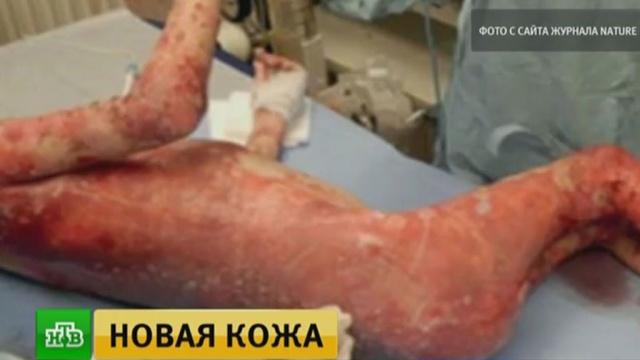 Немецкие врачи пересадили 80% кожи мальчику с синдромом бабочки