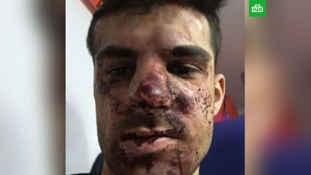 Футболист Зенита показал разбитое в дорожной драке лицо