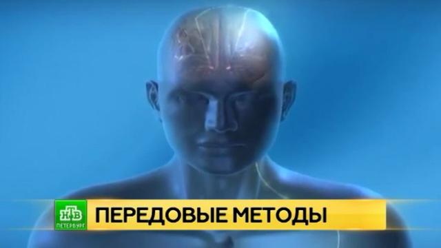 Петербургские нейрохирурги готовы первыми бороться с болезнью Паркинсона с помощью ультразвука