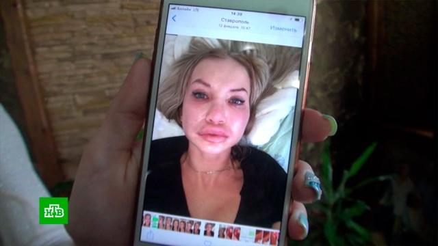 Косметолог-самоучка изуродовала подругу уколами красоты