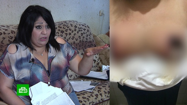 Жительница Армавира судится с хирургом, отрезавшим ей грудь