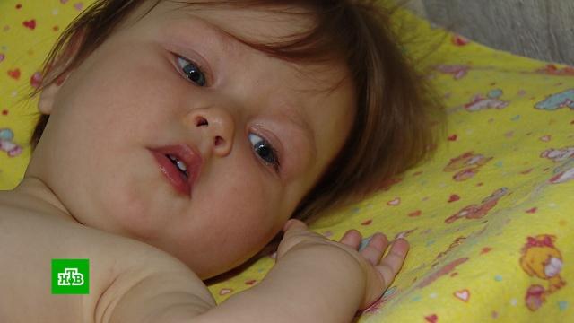 Годовалой Кате срочно нужна помощь в борьбе с тяжелым генетическим заболеванием