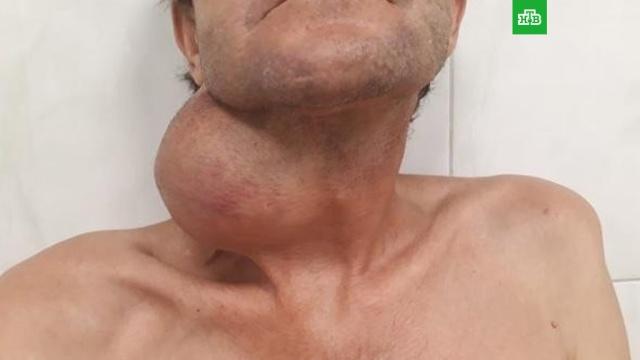 Жителю Кубани ударили опухоль размером с арбуз: фото